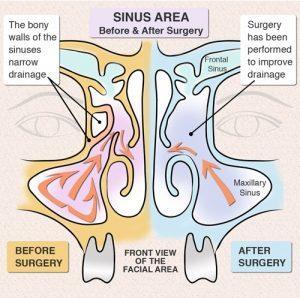 Chronic Sinusitis - Surgery | euforea